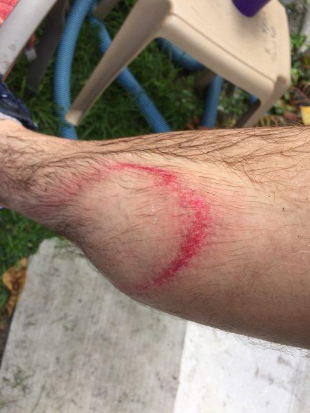 guy injures himself powerwashing